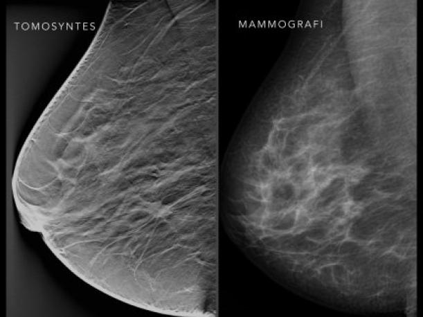 What is Breast Tomosynthesis – and is it Better Than Mammography?